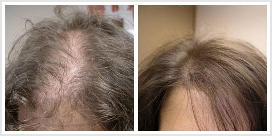 hair loss shampoo Honolulu